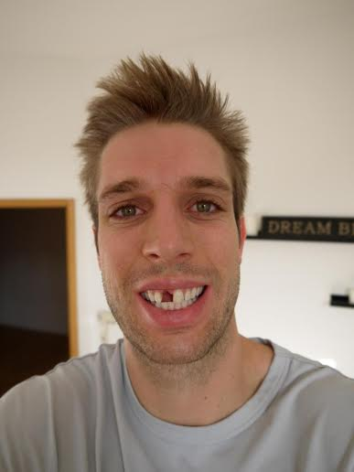 Isn't he handsome? Thank goodness for fake teeth and good dentists.